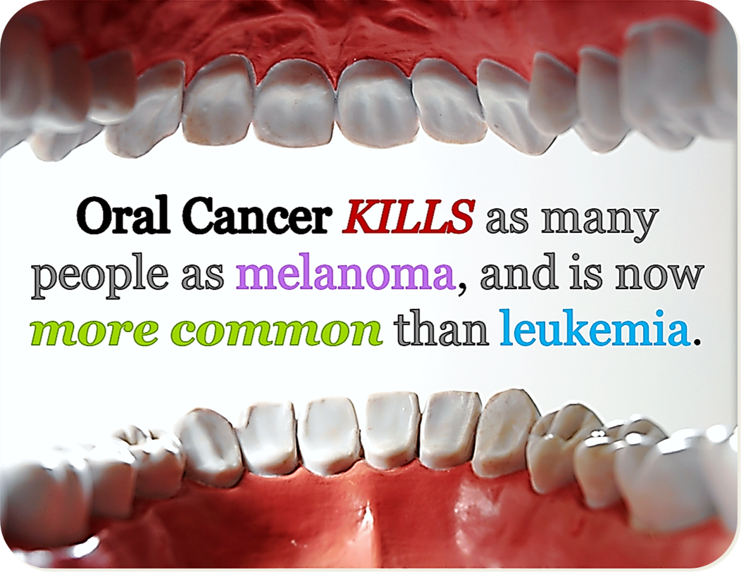Sonoma County Family Dental – Oral CancerEarly Signs Of Oral Cancer From Dipping
